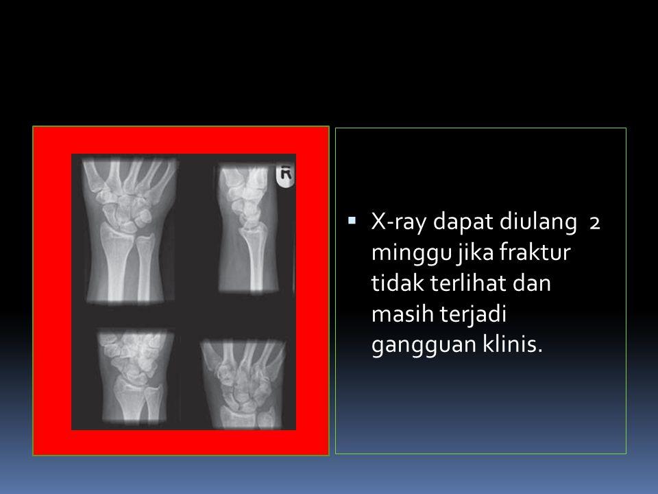 X-ray dapat diulang 2 minggu jika fraktur tidak terlihat dan masih terjadi gangguan klinis.