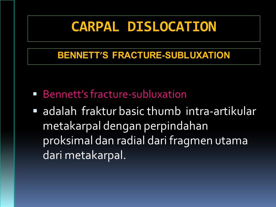 BENNETT'S FRACTURE-SUBLUXATION