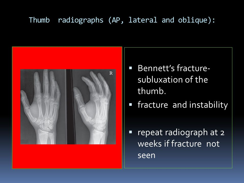 Thumb radiographs (AP, lateral and oblique):