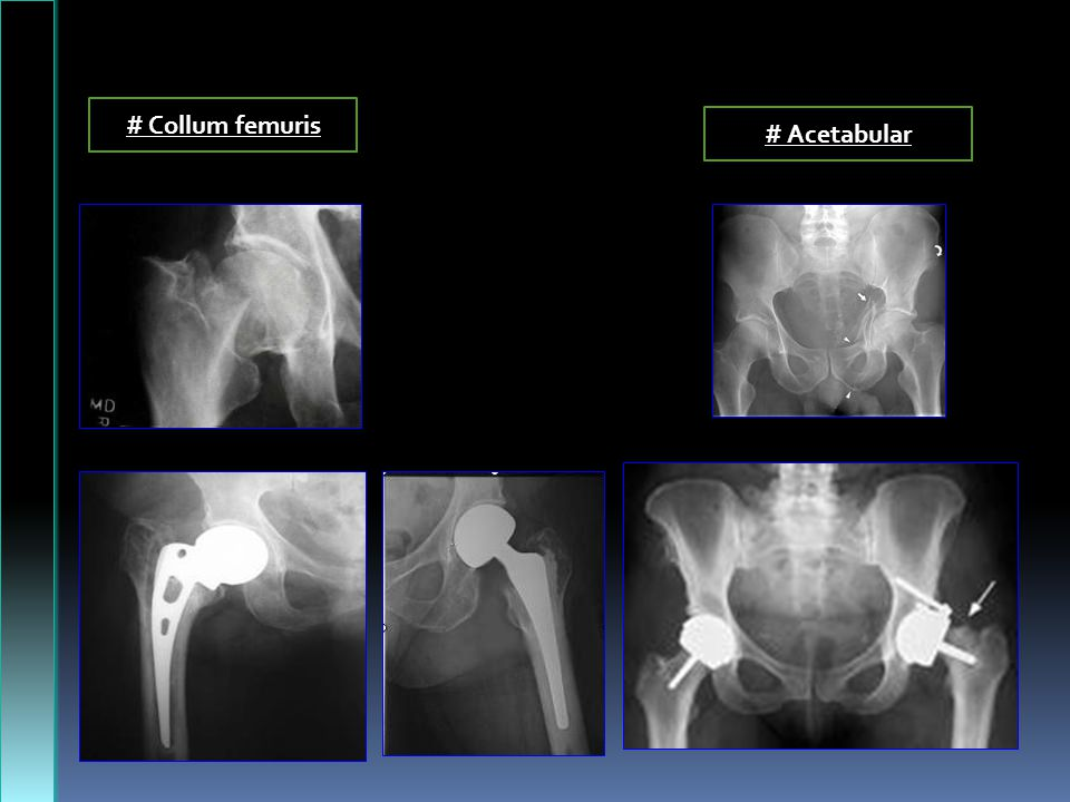# Collum femuris # Acetabular