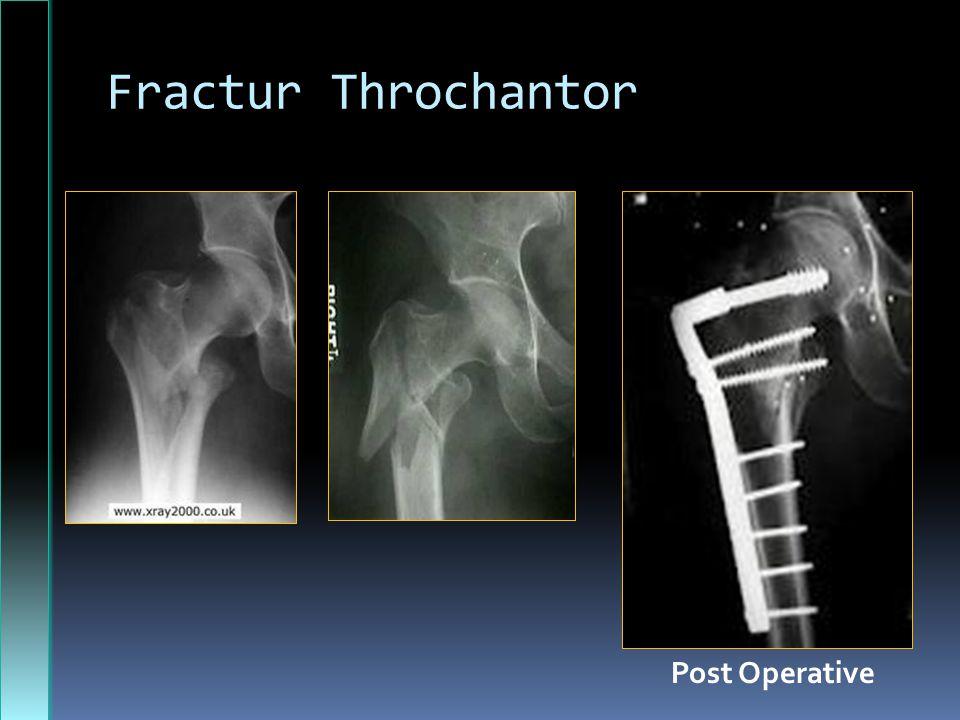 Fractur Throchantor Post Operative