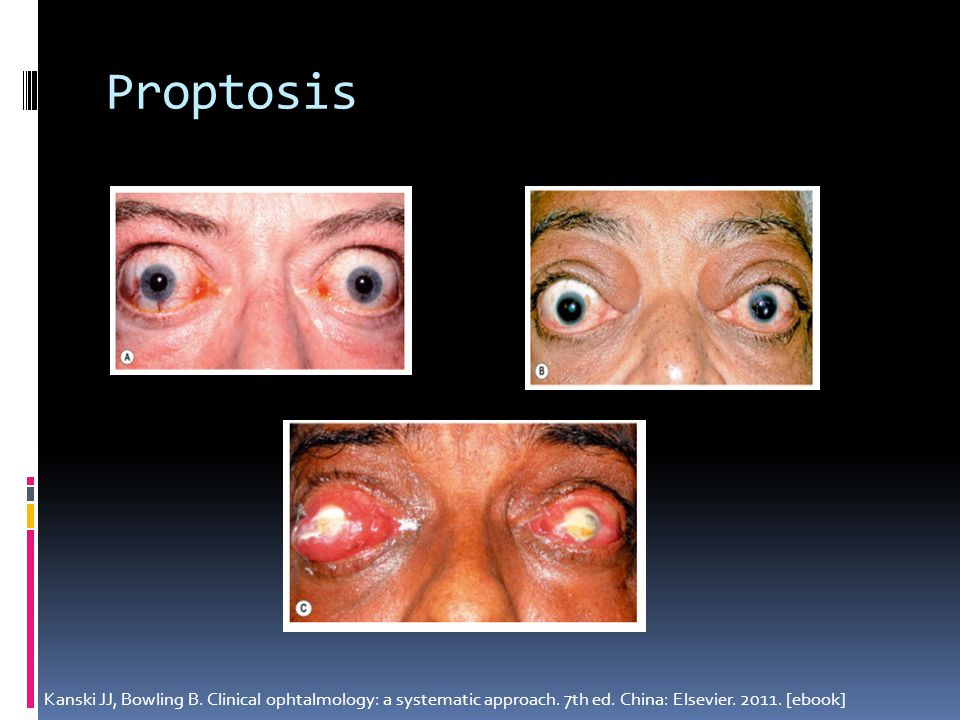 Proptosis Kanski JJ, Bowling B. Clinical ophtalmology: a systematic approach.