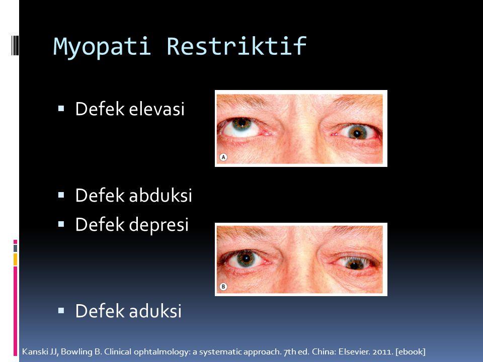 Myopati Restriktif Defek elevasi Defek abduksi Defek depresi