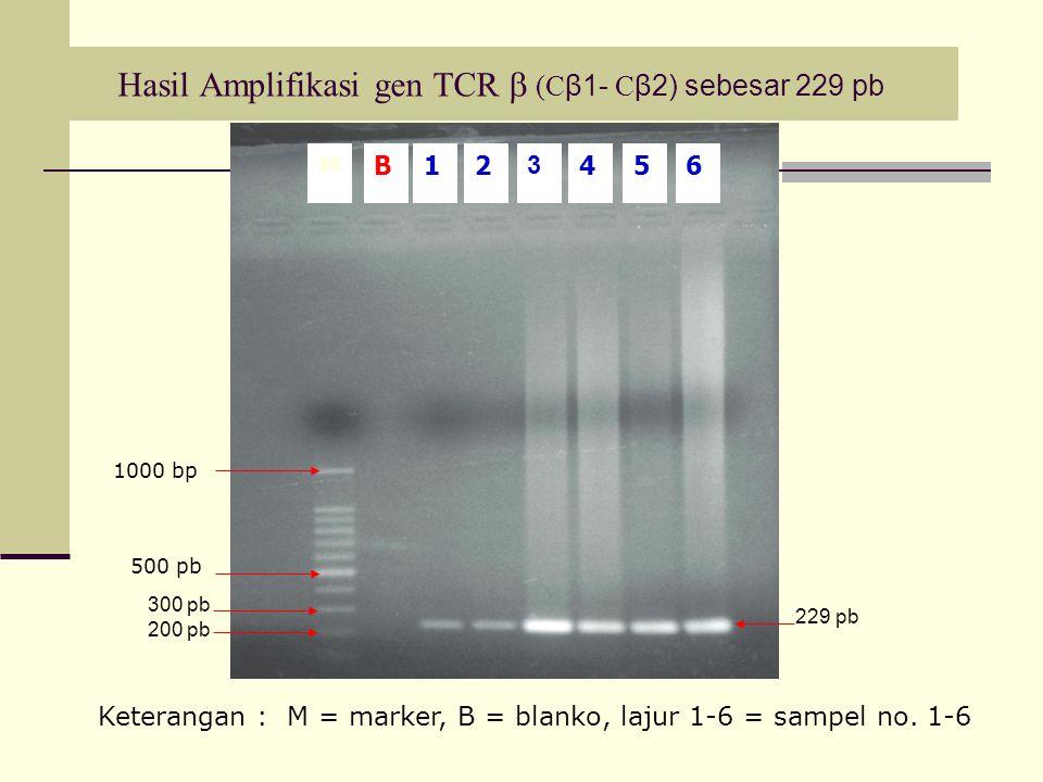 Hasil Amplifikasi gen TCR  (Cβ1- Cβ2) sebesar 229 pb
