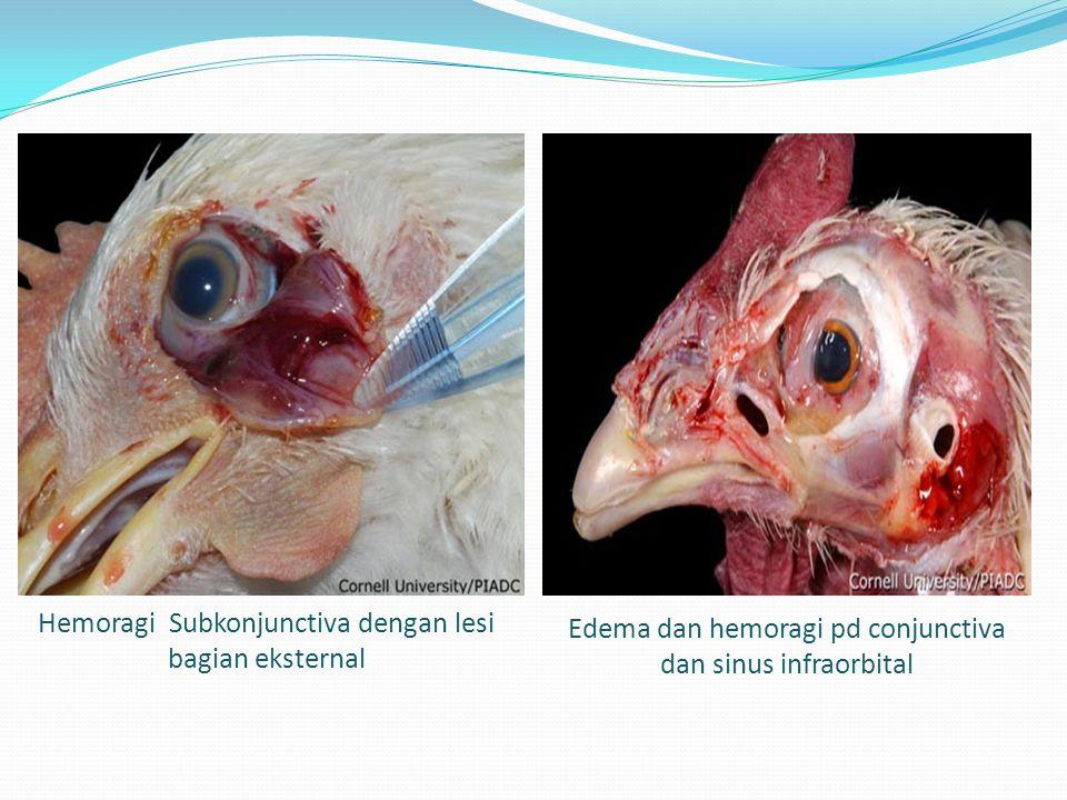 Hemoragi Subkonjunctiva dengan lesi bagian eksternal