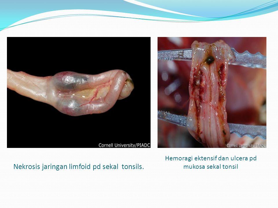 Nekrosis jaringan limfoid pd sekal tonsils.