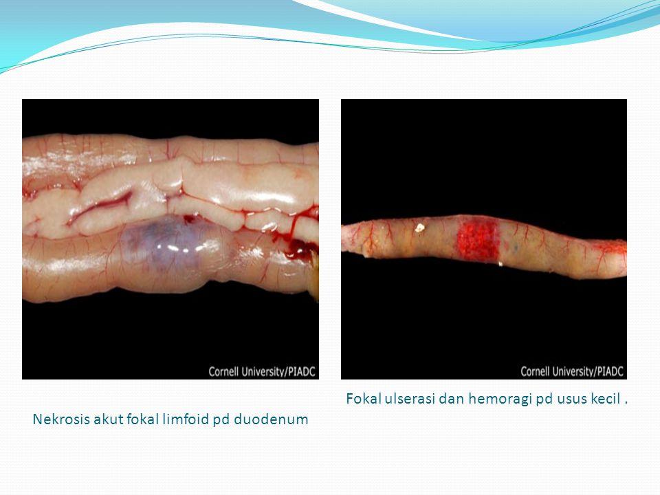 Nekrosis akut fokal limfoid pd duodenum