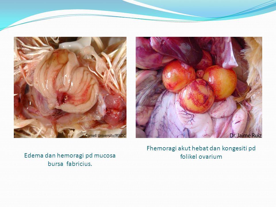 Edema dan hemoragi pd mucosa bursa fabricius.