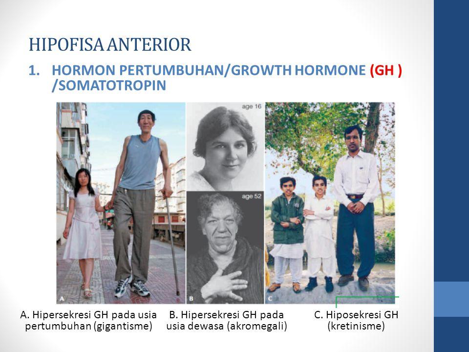 HIPOFISA ANTERIOR HORMON PERTUMBUHAN/GROWTH HORMONE (GH ) /SOMATOTROPIN. A. Hipersekresi GH pada usia pertumbuhan (gigantisme)