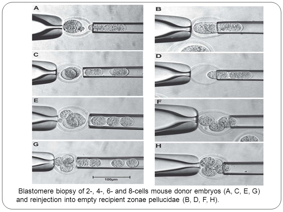 Blastomere biopsy of 2-, 4-, 6- and 8-cells mouse donor embryos (A, C, E, G) and reinjection into empty recipient zonae pellucidae (B, D, F, H).
