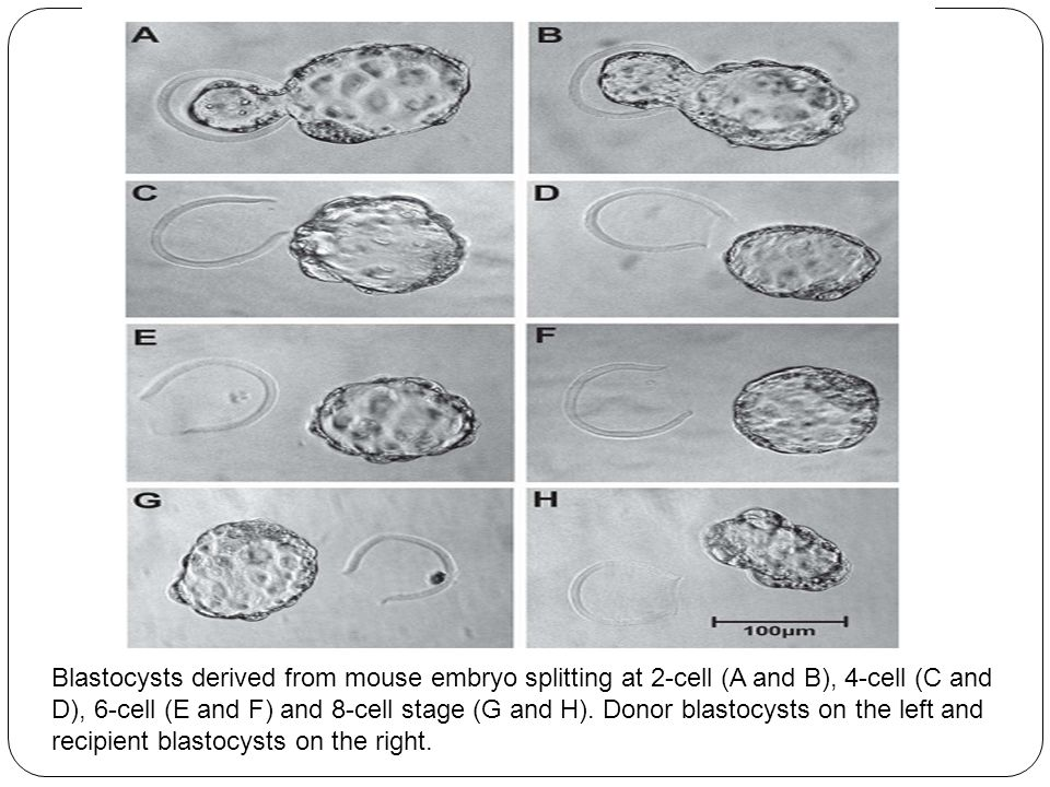 Blastocysts derived from mouse embryo splitting at 2-cell (A and B), 4-cell (C and D), 6-cell (E and F) and 8-cell stage (G and H).