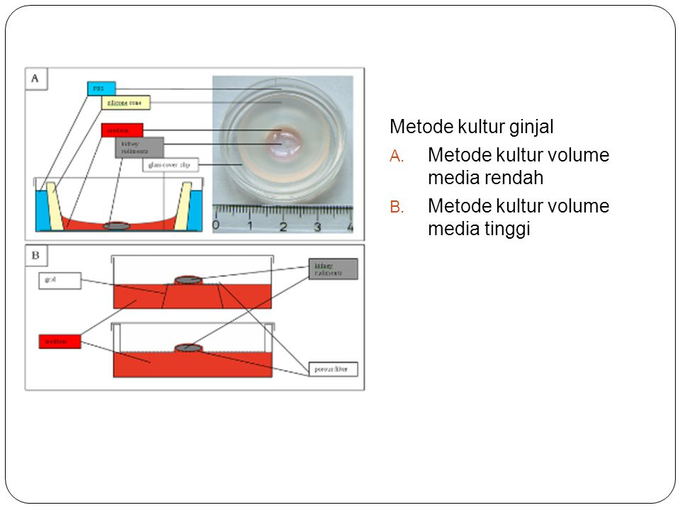 Metode kultur ginjal Metode kultur volume media rendah Metode kultur volume media tinggi