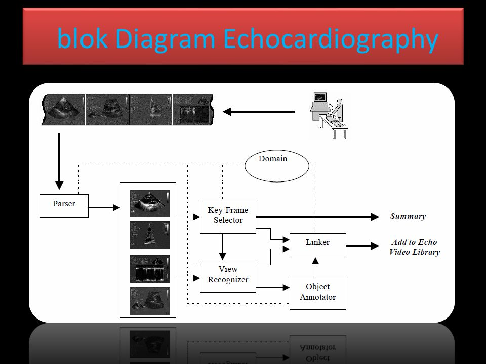 blok Diagram Echocardiography