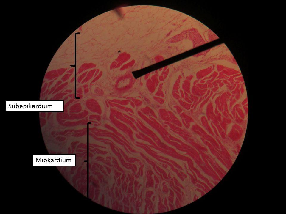 Subepikardium Miokardium