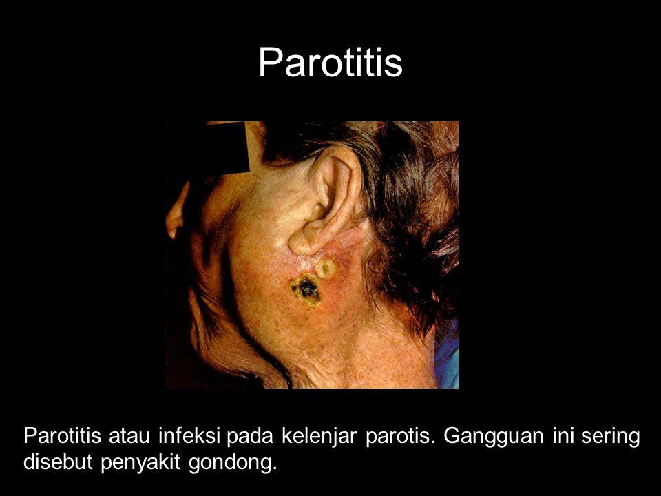 Parotitis Parotitis atau infeksi pada kelenjar parotis.