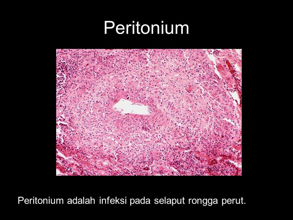Peritonium Peritonium adalah infeksi pada selaput rongga perut.