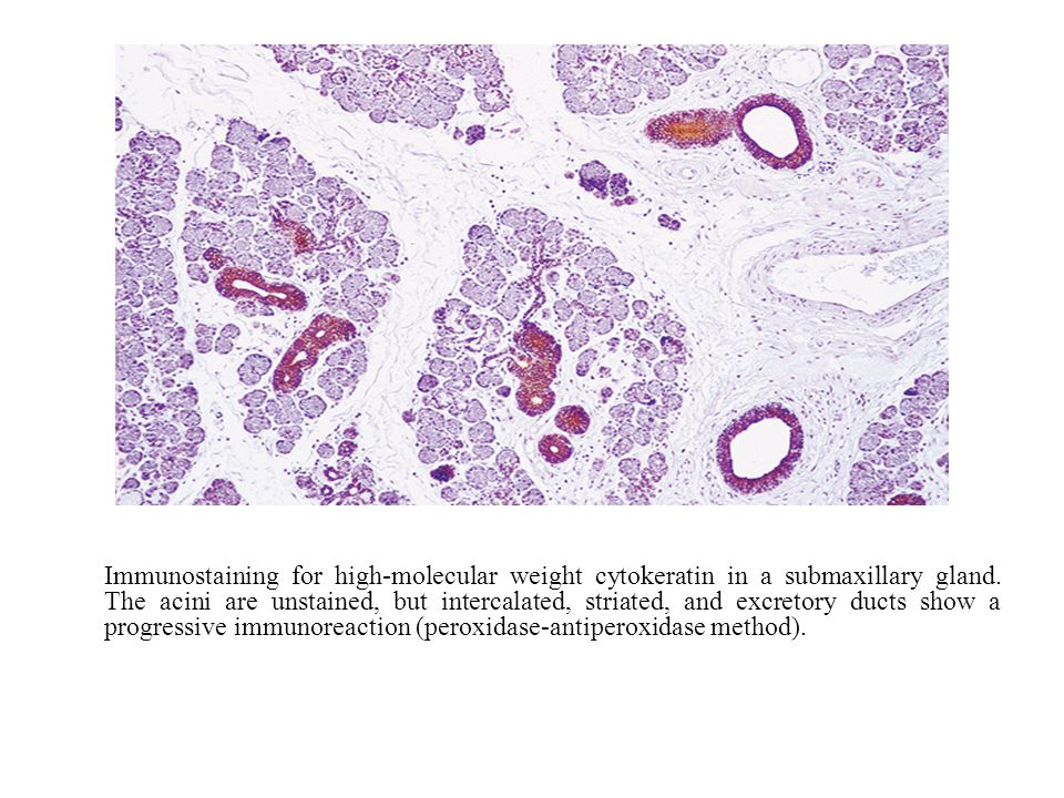 Immunostaining for high-molecular weight cytokeratin in a submaxillary gland.