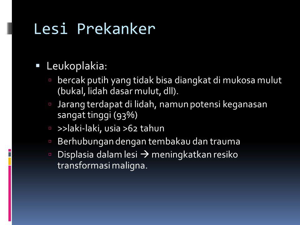Lesi Prekanker Leukoplakia: