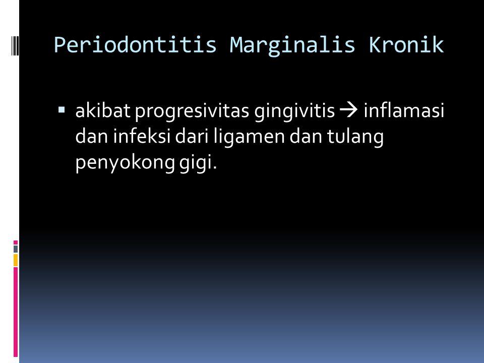 Periodontitis Marginalis Kronik