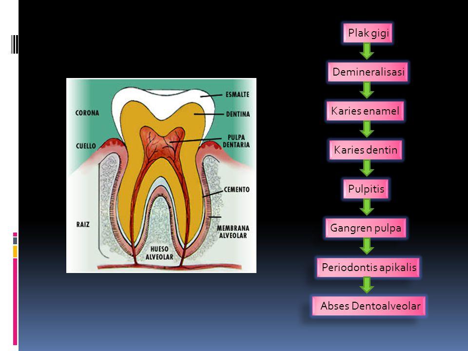 Plak gigi Demineralisasi. Karies enamel. Karies dentin. Pulpitis. Gangren pulpa. Periodontis apikalis.
