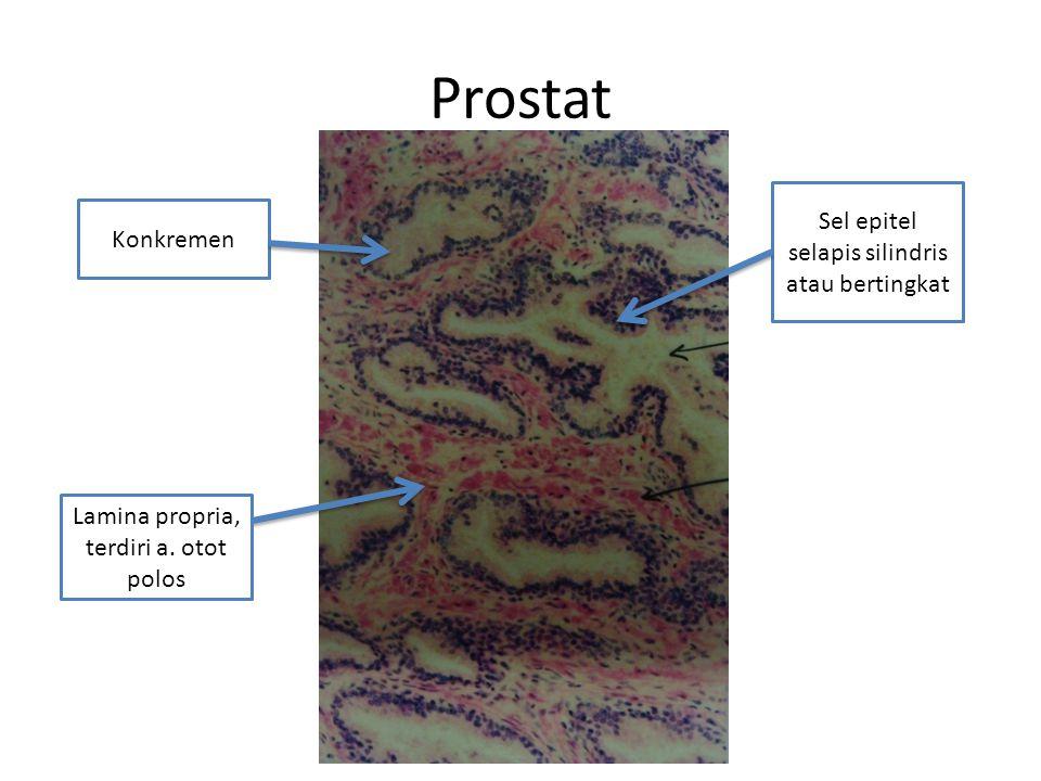 Prostat Sel epitel selapis silindris atau bertingkat Konkremen