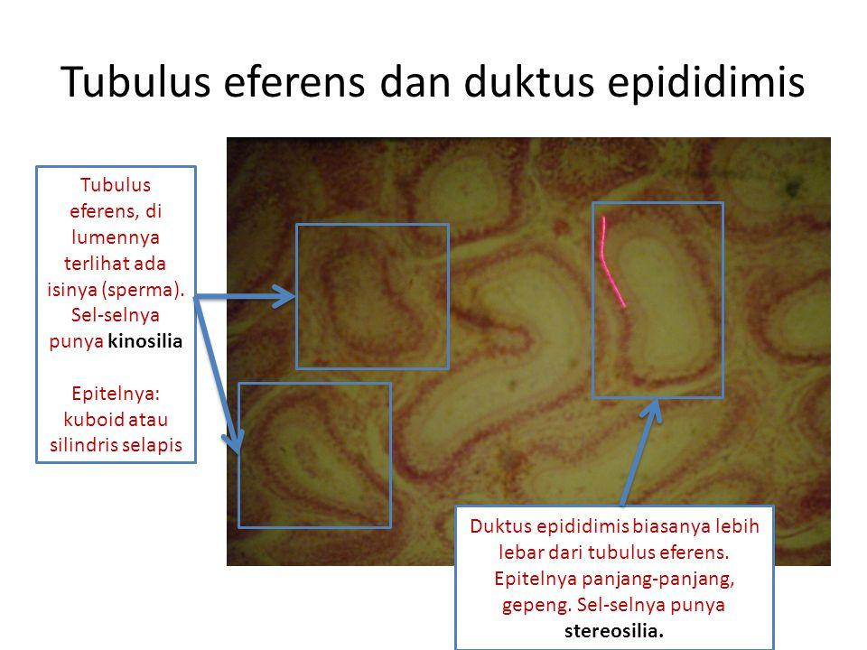 Tubulus eferens dan duktus epididimis