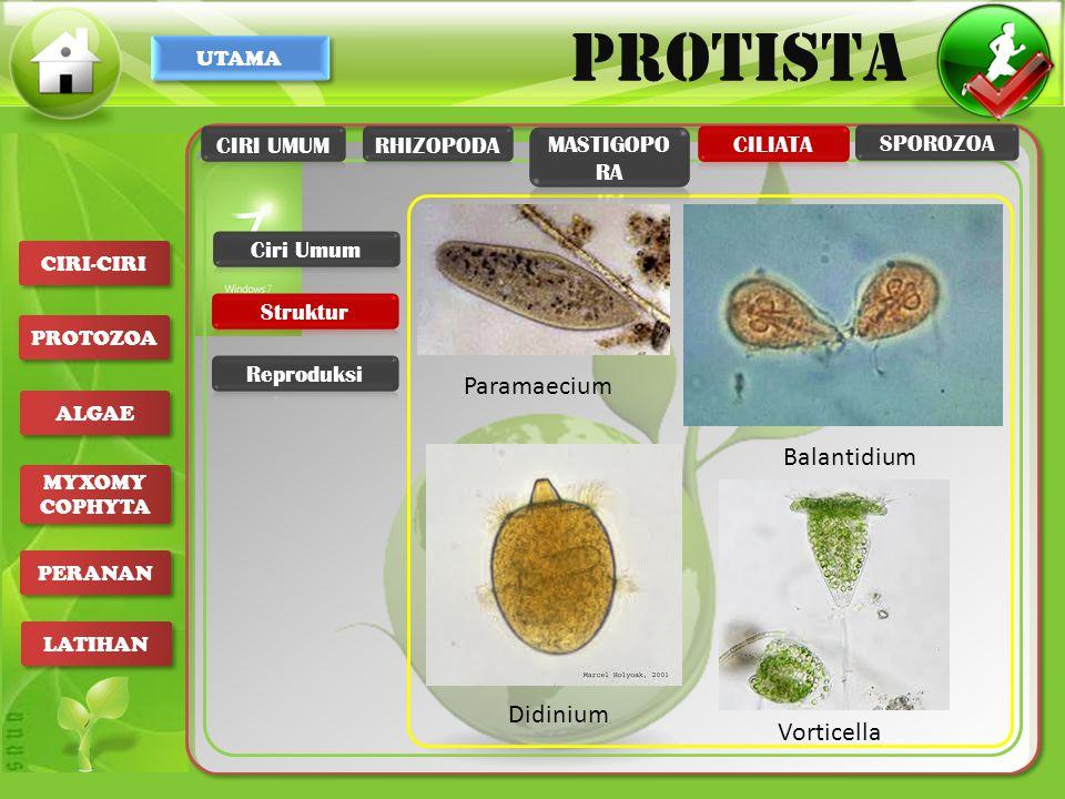 Paramaecium Balantidium Didinium Vorticella CIRI UMUM RHIZOPODA