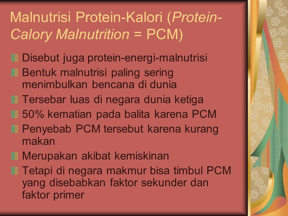 Malnutrisi Protein-Kalori (Protein- Calory Malnutrition = PCM)