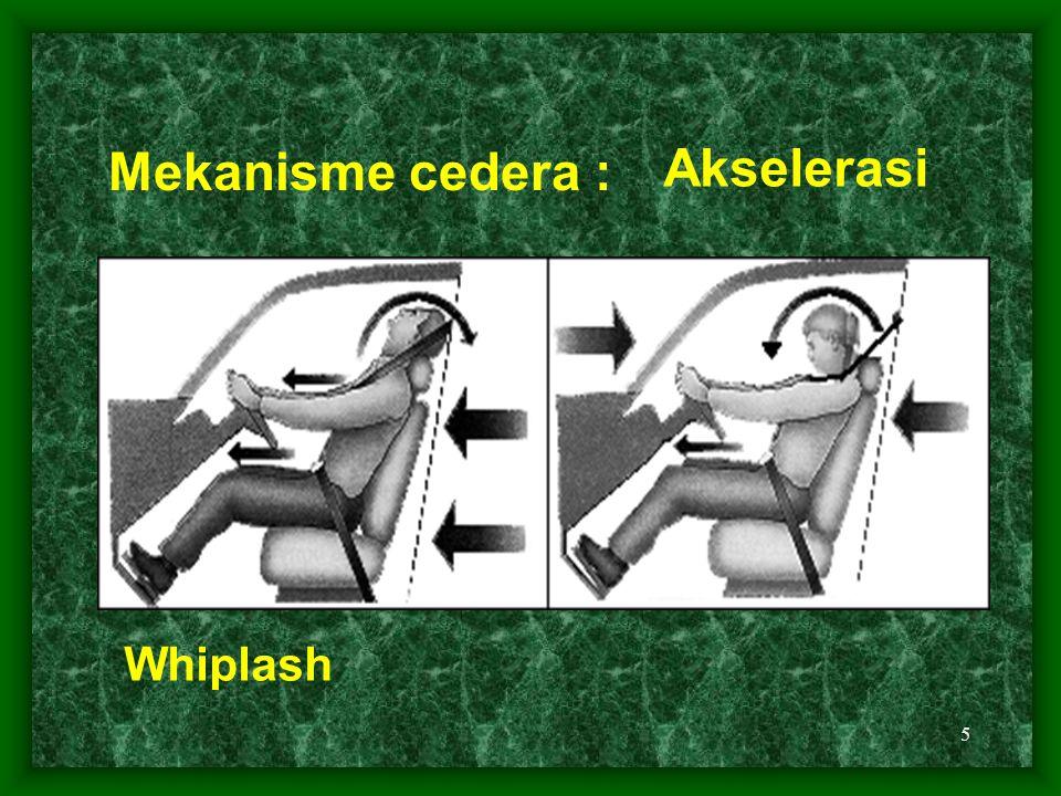 Mekanisme cedera : Akselerasi Whiplash