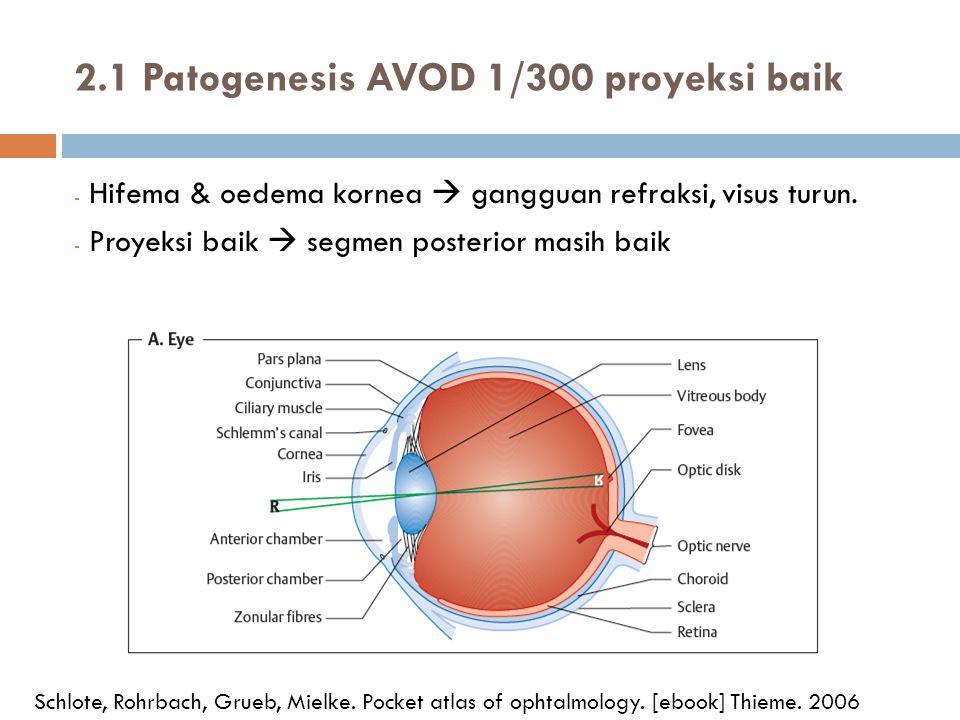 2.1 Patogenesis AVOD 1/300 proyeksi baik