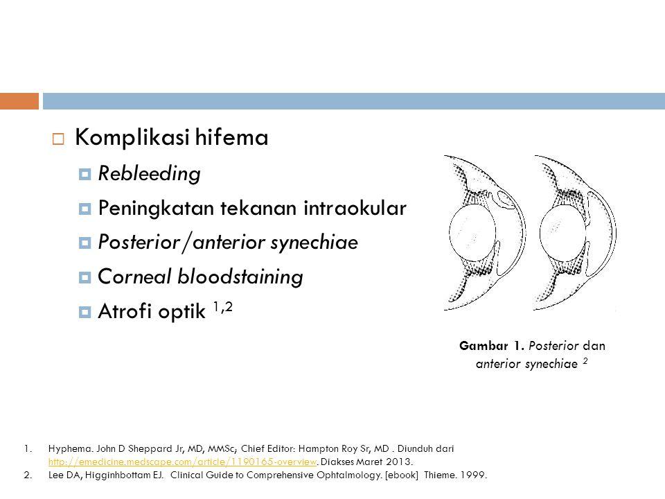 Gambar 1. Posterior dan anterior synechiae 2