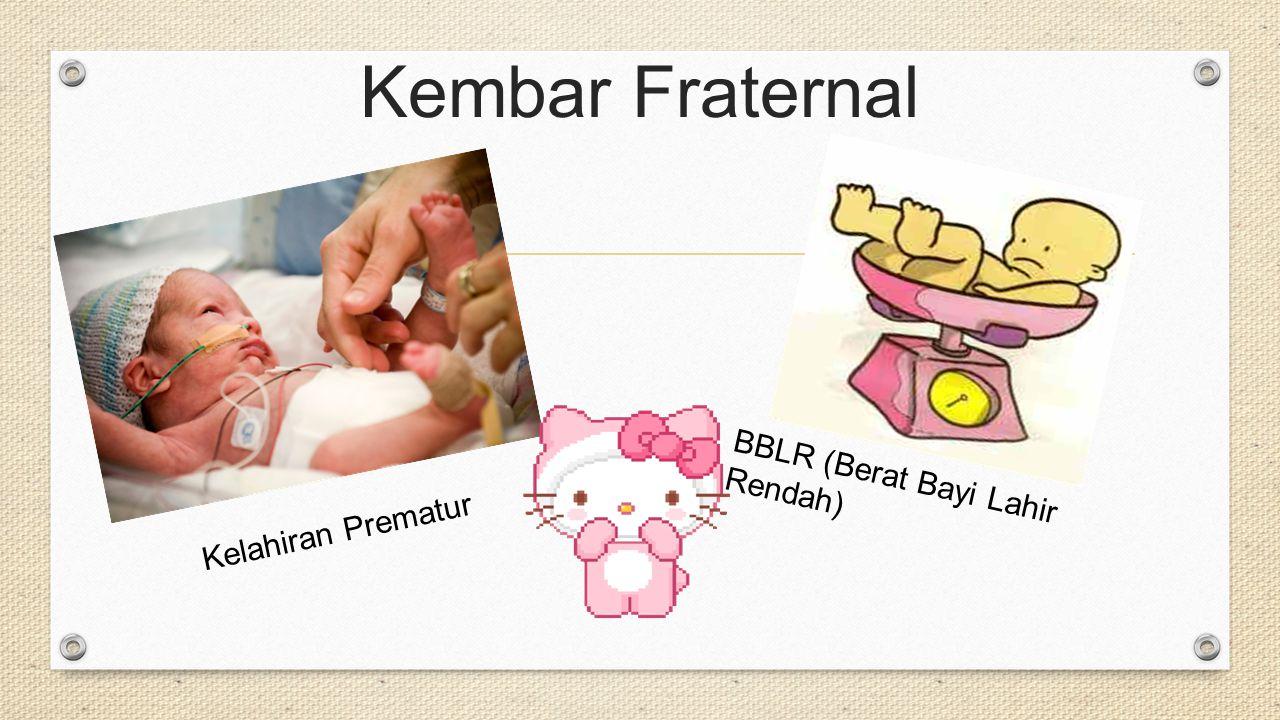 Kembar Fraternal BBLR (Berat Bayi Lahir Rendah) Kelahiran Prematur