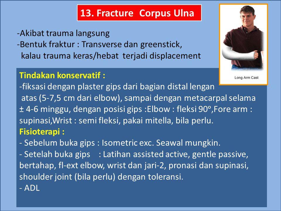 13. Fracture Corpus Ulna Akibat trauma langsung