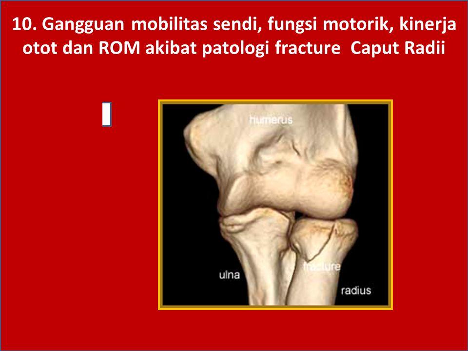 10. Gangguan mobilitas sendi, fungsi motorik, kinerja otot dan ROM akibat patologi fracture Caput Radii