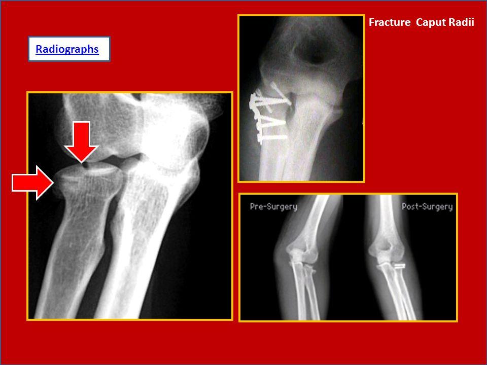 Fracture Caput Radii Radiographs: