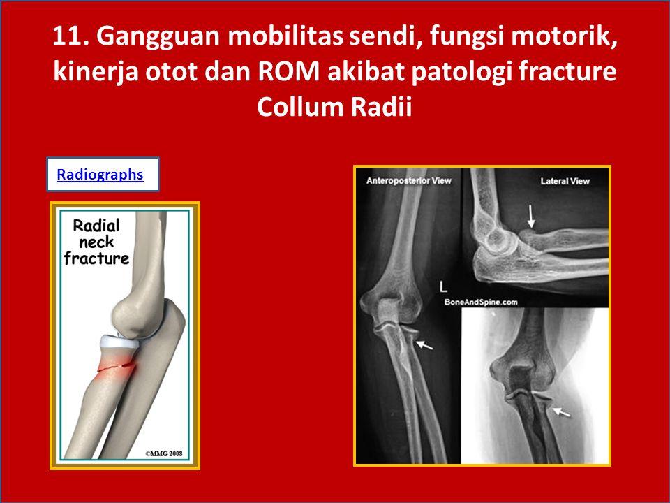 11. Gangguan mobilitas sendi, fungsi motorik, kinerja otot dan ROM akibat patologi fracture Collum Radii