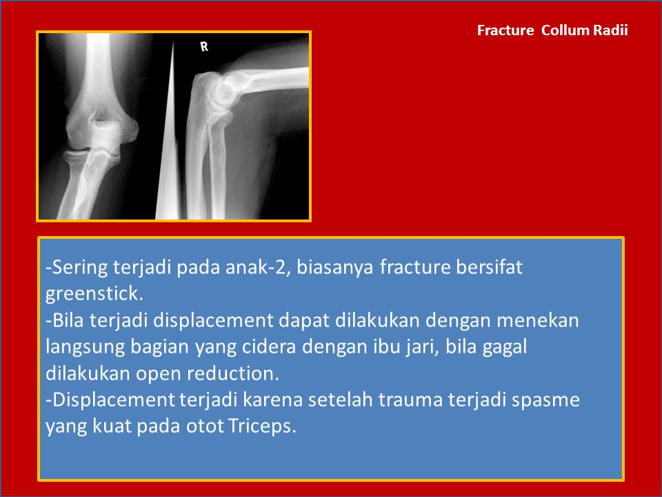 -Sering terjadi pada anak-2, biasanya fracture bersifat greenstick.