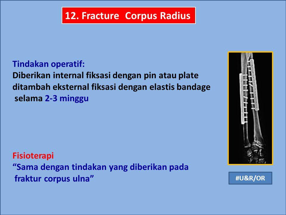 12. Fracture Corpus Radius