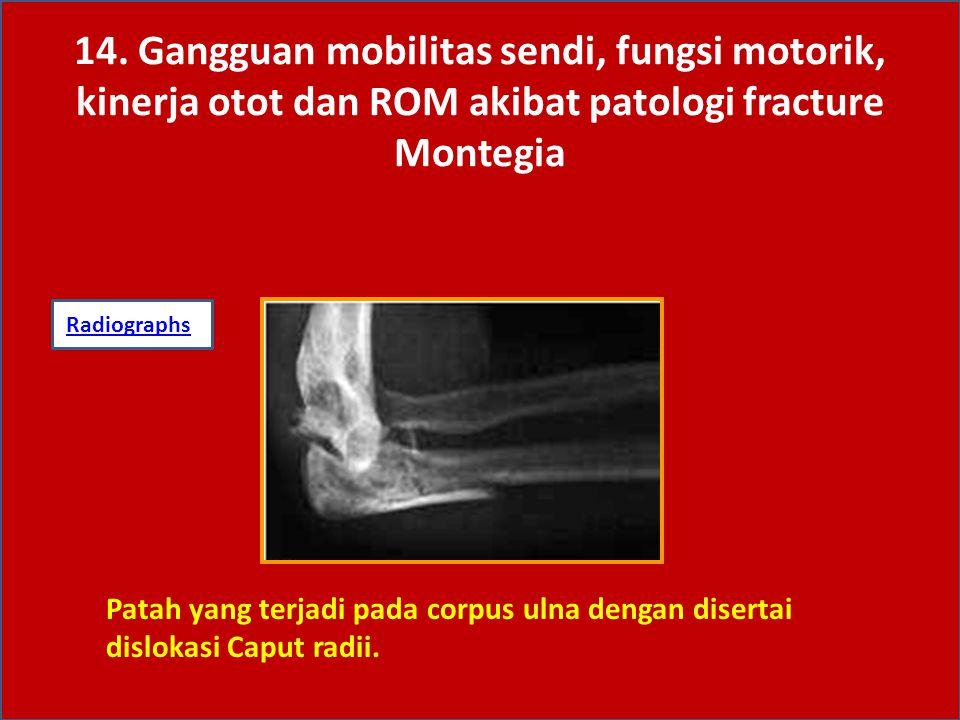 14. Gangguan mobilitas sendi, fungsi motorik, kinerja otot dan ROM akibat patologi fracture Montegia