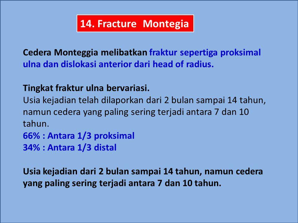 14. Fracture Montegia Cedera Monteggia melibatkan fraktur sepertiga proksimal ulna dan dislokasi anterior dari head of radius.