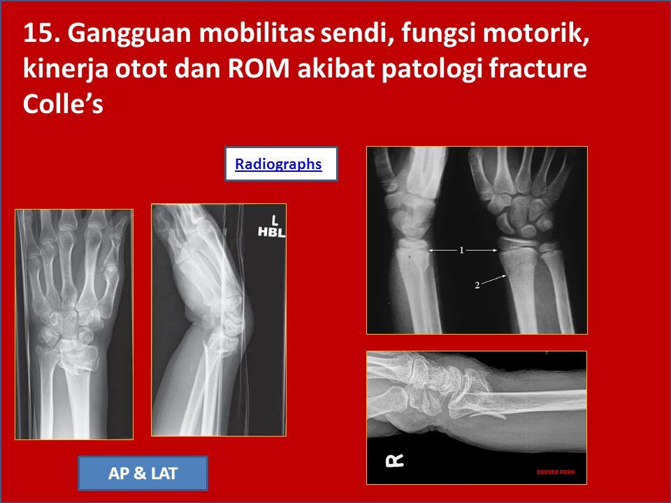15. Gangguan mobilitas sendi, fungsi motorik, kinerja otot dan ROM akibat patologi fracture Colle's