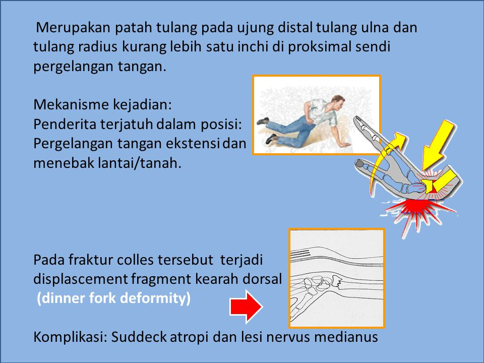 Penderita terjatuh dalam posisi: Pergelangan tangan ekstensi dan