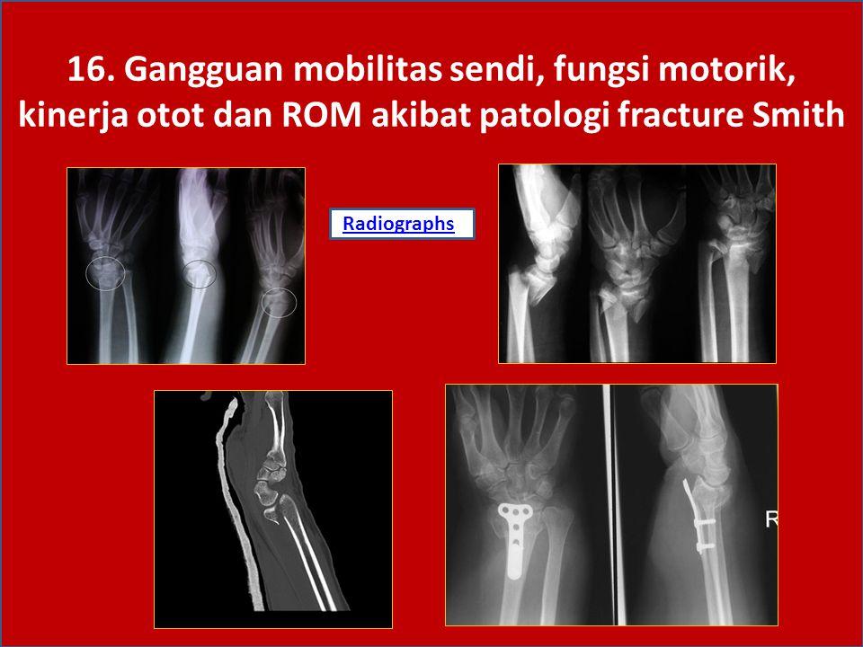 16. Gangguan mobilitas sendi, fungsi motorik, kinerja otot dan ROM akibat patologi fracture Smith