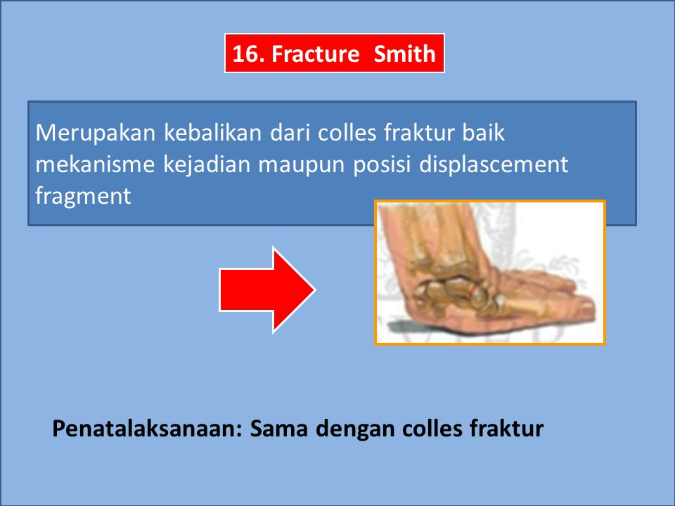 Penatalaksanaan: Sama dengan colles fraktur