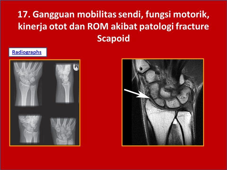 17. Gangguan mobilitas sendi, fungsi motorik, kinerja otot dan ROM akibat patologi fracture Scapoid