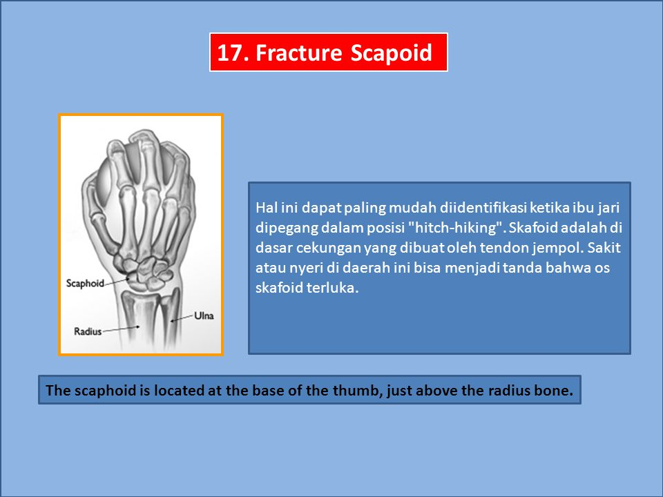 17. Fracture Scapoid