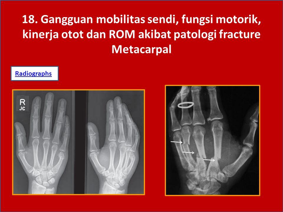 18. Gangguan mobilitas sendi, fungsi motorik, kinerja otot dan ROM akibat patologi fracture Metacarpal