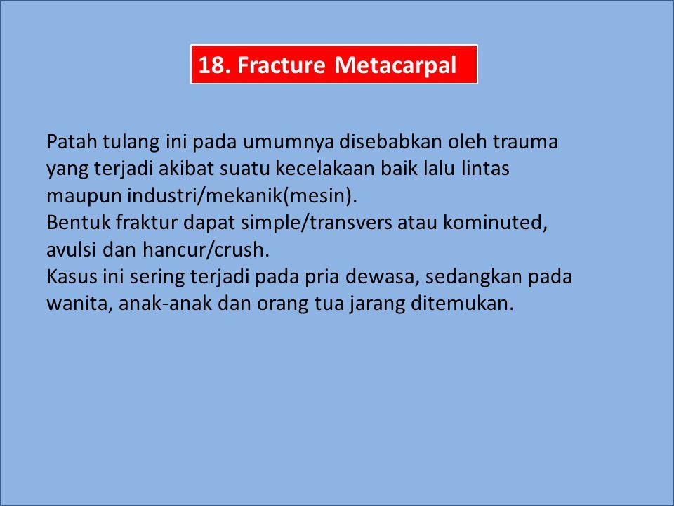 18. Fracture Metacarpal
