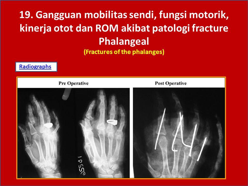 19. Gangguan mobilitas sendi, fungsi motorik, kinerja otot dan ROM akibat patologi fracture Phalangeal (Fractures of the phalanges)
