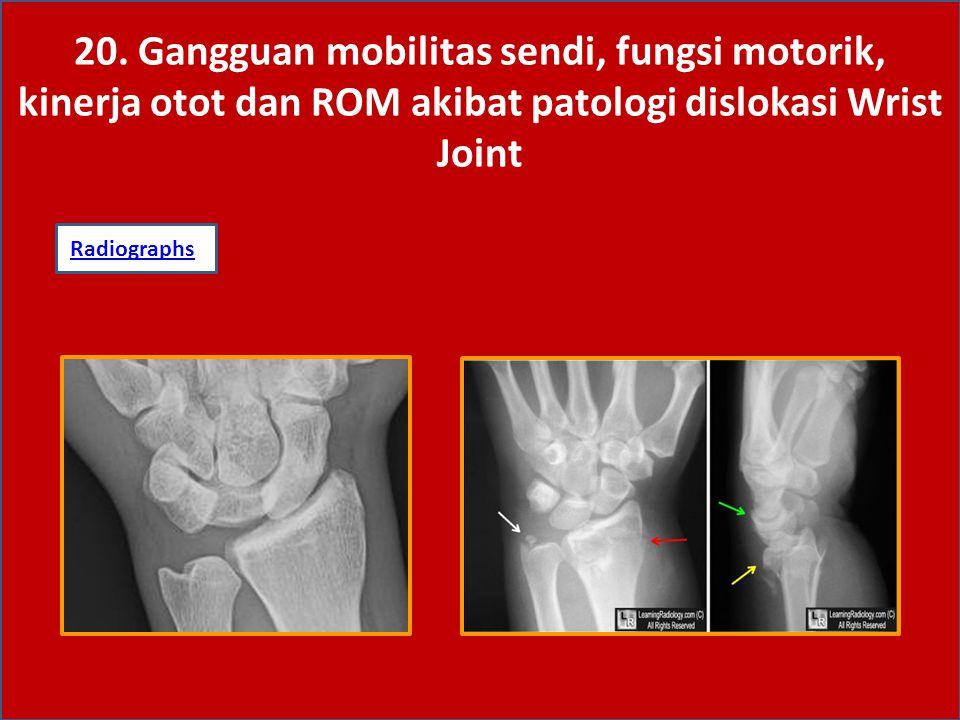 20. Gangguan mobilitas sendi, fungsi motorik, kinerja otot dan ROM akibat patologi dislokasi Wrist Joint